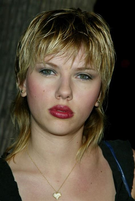 celebrities with herpes picture 17
