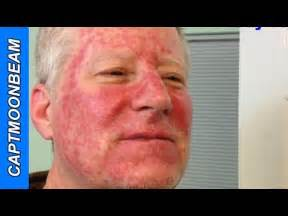 fluorouracil 5 cream side effects picture 1