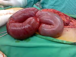 colon obstruction picture 1