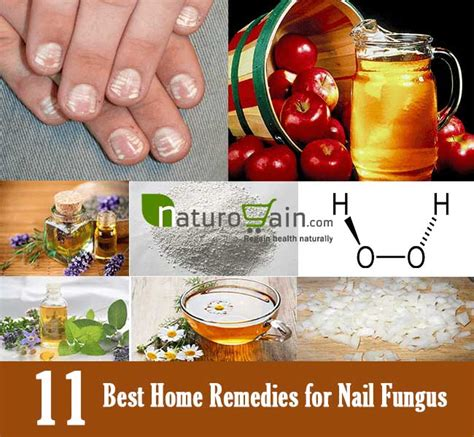best fungus cure for guppies picture 10