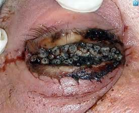 vampire fungus in stomach scam picture 6