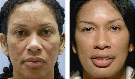 american anti aging solutions picture 13