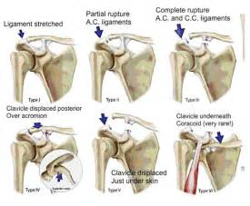 acromioclavicular joint picture 7