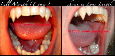 custom teeth picture 13