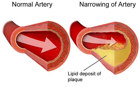 Cholesterol and plaque picture 2