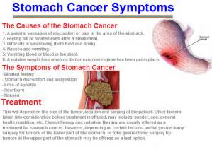 Stomach cramps with prostate cancer picture 2
