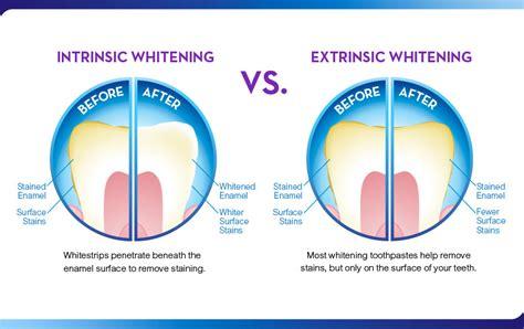 ten top bleaching gels that work similar to picture 5