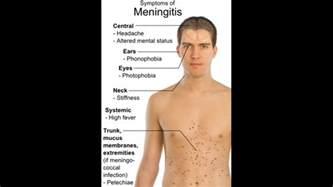symptoms menichitis picture 15