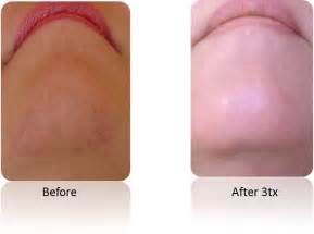 hair removal upper lip picture 3