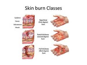 first degree burn of the skin picture 14