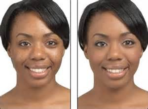 dermabrasion for black skin picture 2