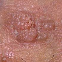 pics of warts under head of cocks picture 10