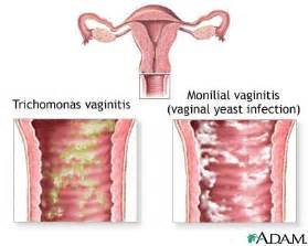 how to cure an bacterial vagina infection picture 2