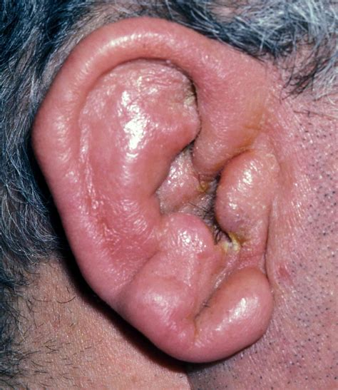 any acute, inflammatory, pus-forming bacterial skin infection, such picture 4