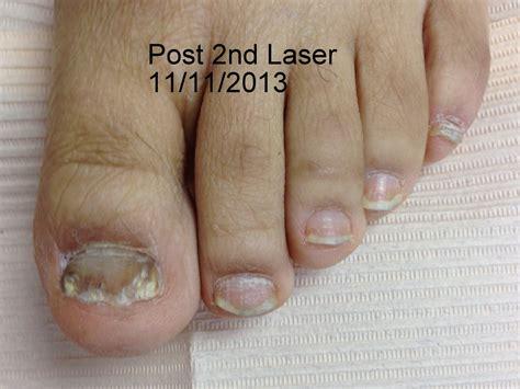 nail fungus laser az picture 2