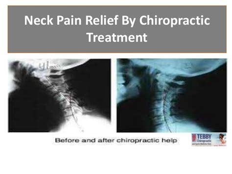 pain relief treatment picture 6