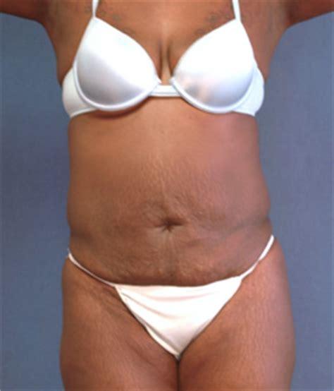 breast augmentation indianapolis picture 6