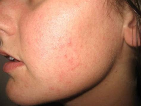 natural acne remedies picture 7