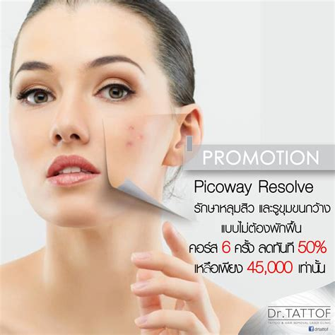 acne scars pattaya picture 5