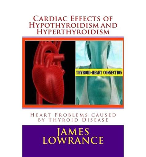 effects of hypothyroidism picture 5