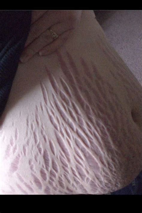 will the sun make new stretch marks worse picture 1