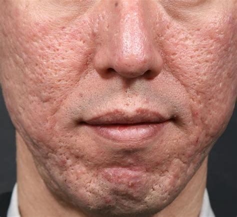 acne scarring on face what to do picture 5