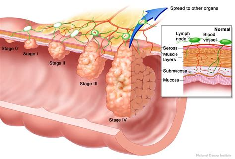 colon tumor picture 14