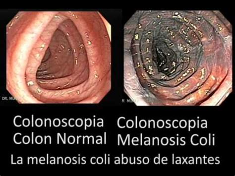 what is melanosis in the colon picture 3