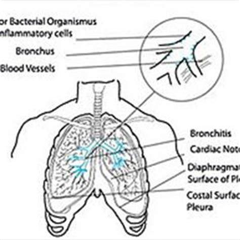 bronovil complaints picture 14