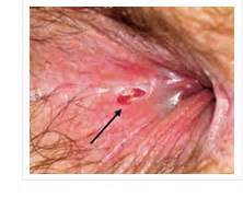 can you ve with hemorrhoids picture 10