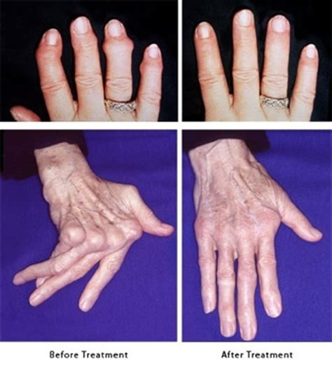 finger joint replacements picture 6