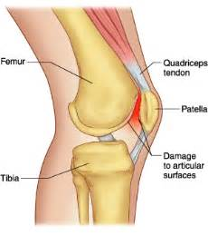 criteria for facet joint replacement picture 10