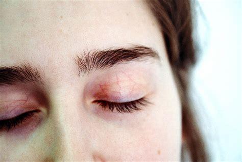 what is cerbvas disease le facia picture 7