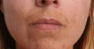 Discoloration and irritation on upper lip picture 7