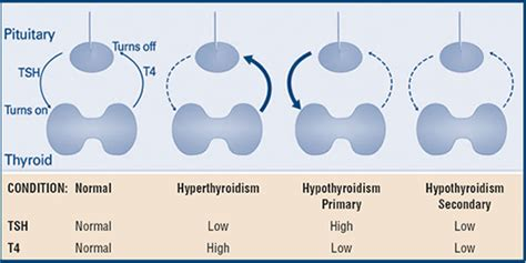 abnormal thyroid levels picture 2