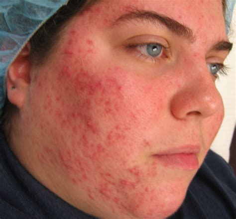 pictures of different skin conditions picture 13