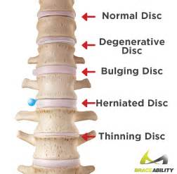 muscle relaxant herniated disc picture 5