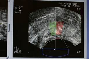 Prostate ultrasound proceedure picture 3