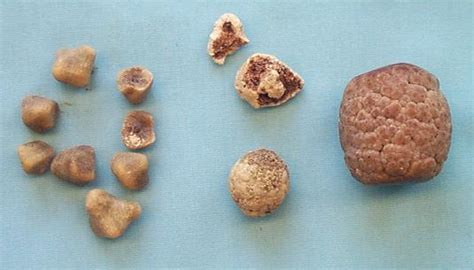 quantumin plus and gall stone picture 9