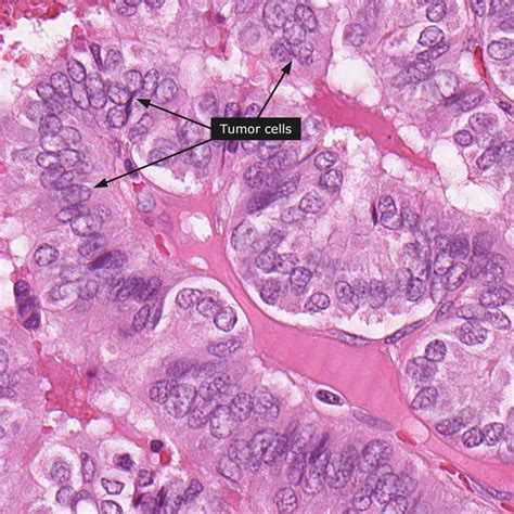 icd9 code papillary thyroid cancer picture 3