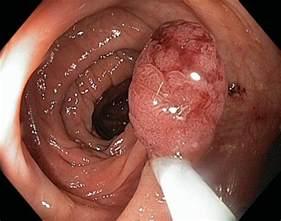 Colitis of the desending colon and the sigmoid picture 1