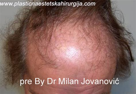 cosmetic surgery hair picture 15
