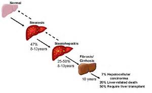 history of alcoholic liver diseases picture 7