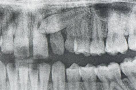 correcting impacted teeth picture 15