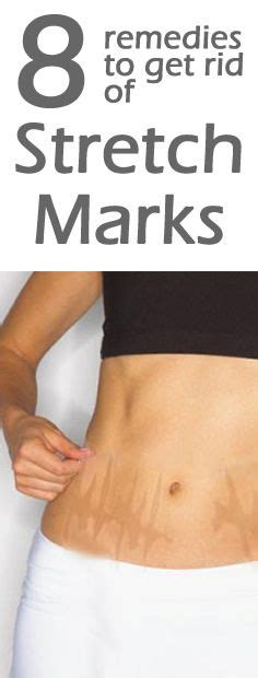 ing a bra to prevent stretch marks picture 22