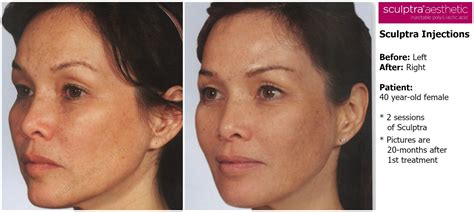 is sculptra good for acne scaring picture 23