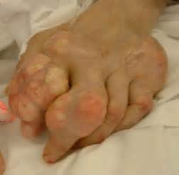 gout in a thumb joint picture 9