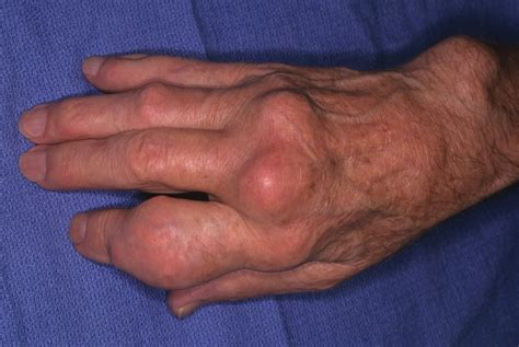 gout in a thumb joint picture 3