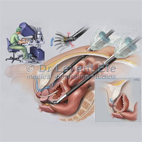 prostate surgery picture 3