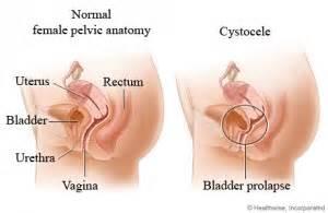 pressure on bladder inside of vagina picture 2